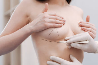 questions-to-think-about-when-considering-plastic-surgery