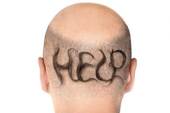 guide-to-combat-mens-hair-loss-main-image-fashionisers-balding-man-with-help-written-on-head-in-hair