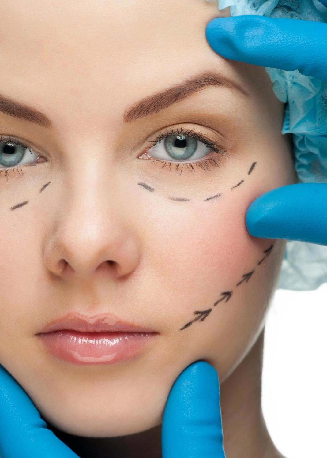 Scar Facelift Treatment