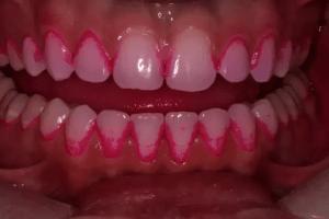 歯石の染め出し
