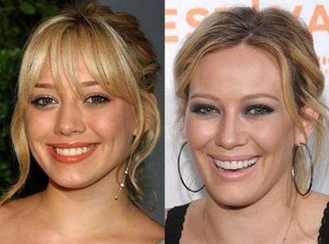 Celebrity Teeth Then & Now 10
