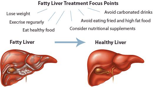 fatty liver grade 1 \u2013 what is fatty liver grade one fatty liverfatty liver grade 1