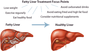 fatty_liver_treatments