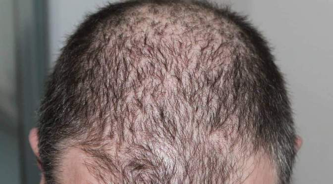 What's the Safest Way to Treat Male Pattern Baldness?