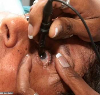 Só em 2011, médicos cubanos recuperaram a visão gratuitamente de2 milhões de pessoas em 35 países