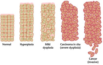 Manfaat bawang putih tunggal untuk kanker
