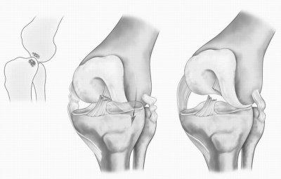 Ушиб коленного сустава при падении лечение симптомы полное описание травмы