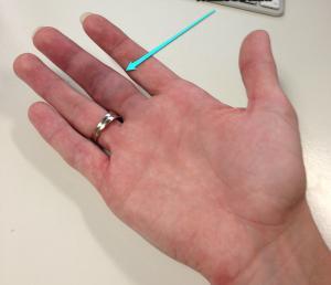 Finger sich den schnell wie kann brechen man Wie bricht