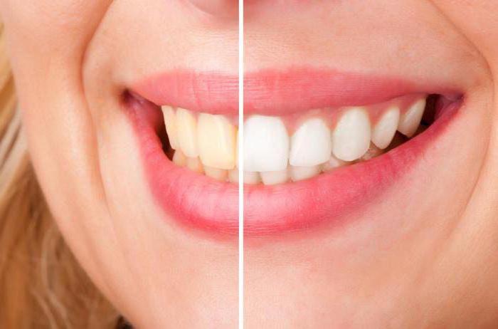 Боль после отбеливания зубов - что делать если болят зубы после отбеливания