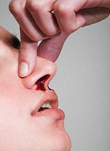 Как вызвать кровотечение из носа быстро и безопасно. Как вызвать кровь из носа без боли самому себе – зачем это нужно