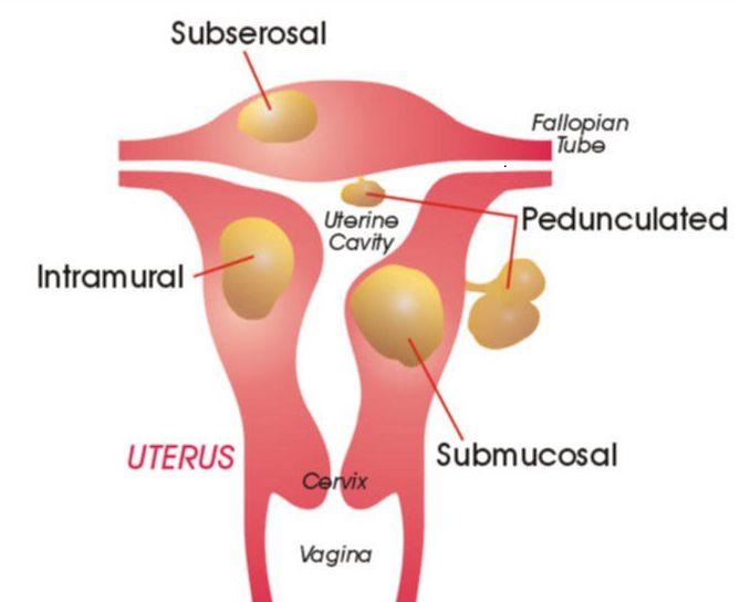 Беременность и миома матки: особенности вынашивания и родов. Миома и беременность — все нюансы ведения родов и вынашивания малыша