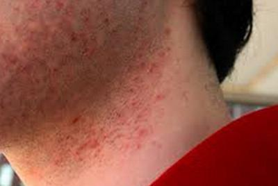 Воспаление волосяных луковиц на голове лечение