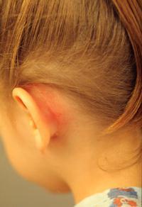 Почему возникает мастоидит? Мастоидит: характеристика, симптомы, особенности лечения и прогноз Двухсторонний мастоидит лечение