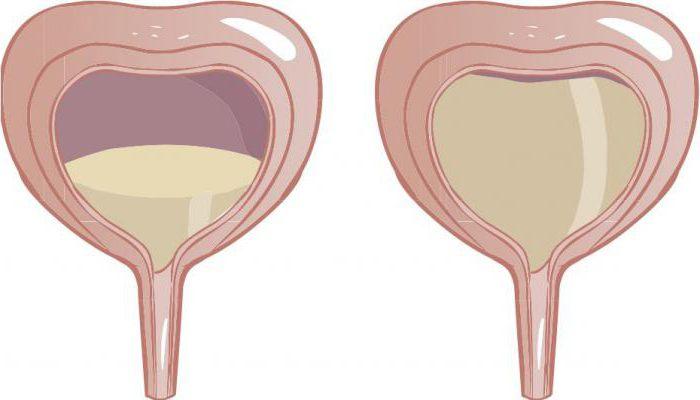 disfuncție de erecție neurogenă