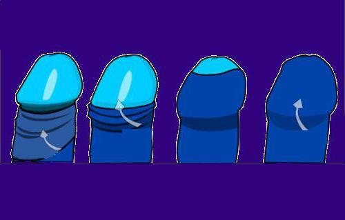 Как правильно промывать препуциальный мешок