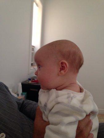 ematoma sulla testa neonato