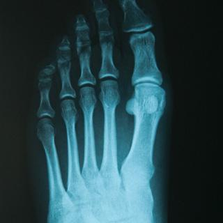Сильно ушибла мизинец на ноге что делать. Как долго больно ходить если ударил, выбил или вывихнул мизинец: симптомы, фото