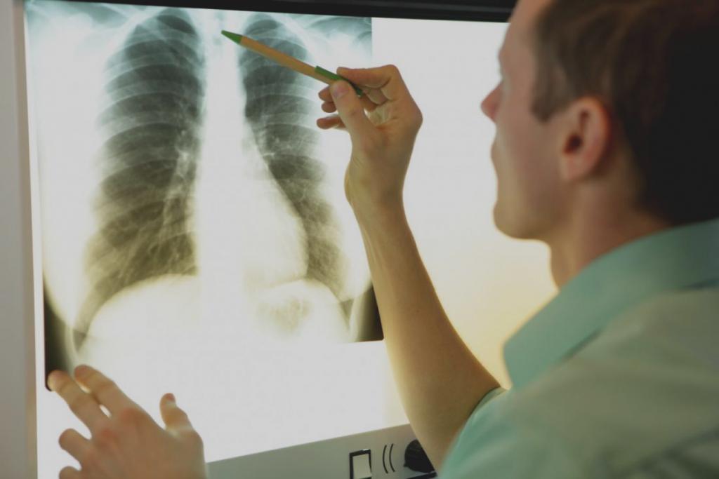 Как правильно сделать рентген снимок ребер при переломе показания и методы диагностики