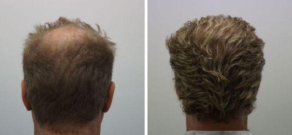 haartransplantatie kruin voor en na