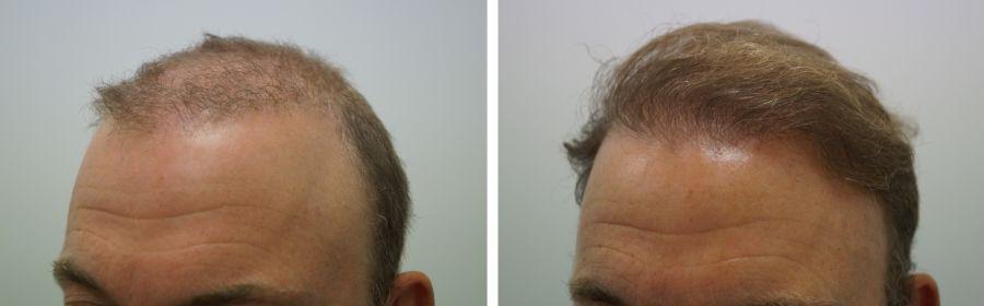 corrigeren herstellen onnatuurlijke haartransplantatie
