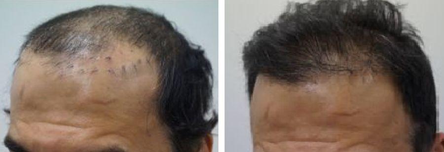 haartransplantatie herstel onnatuurlijke haartransplantatie