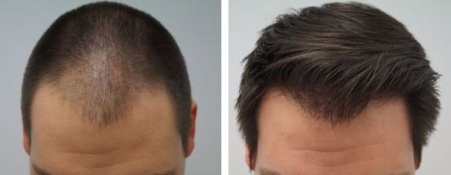 haartransplantatie voorkant man voor en na