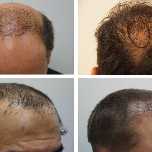 Mislukte haartransplantatie