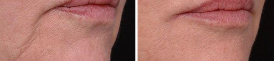 botox fillers afhangende mondhoeken marjonetlijnen