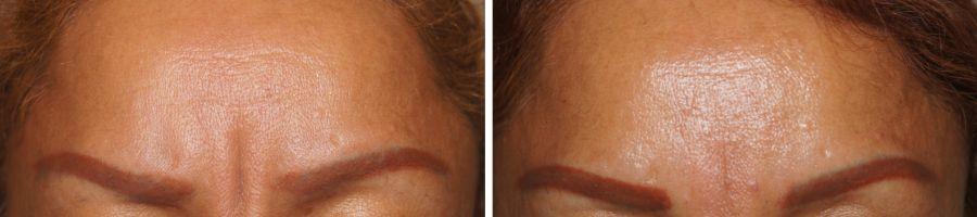 Botox behandeling tegen rimpels