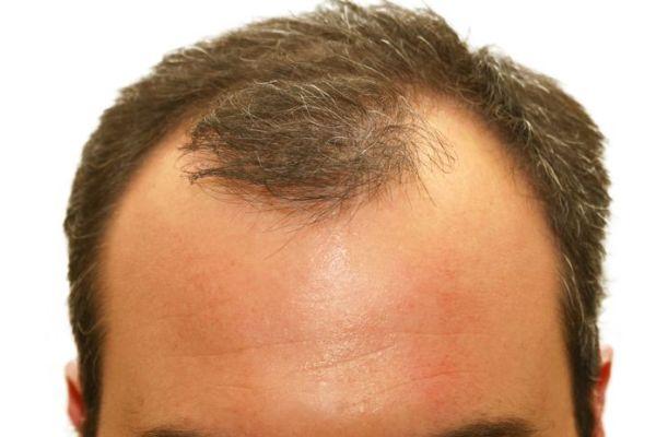 Haartransplantatie inhammen