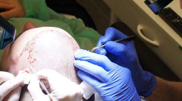 fb clinic FUE haartransplantatie