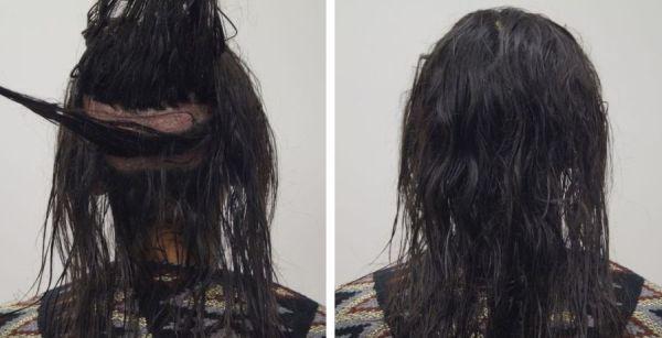 haartransplantatie zonder kaal te scheren