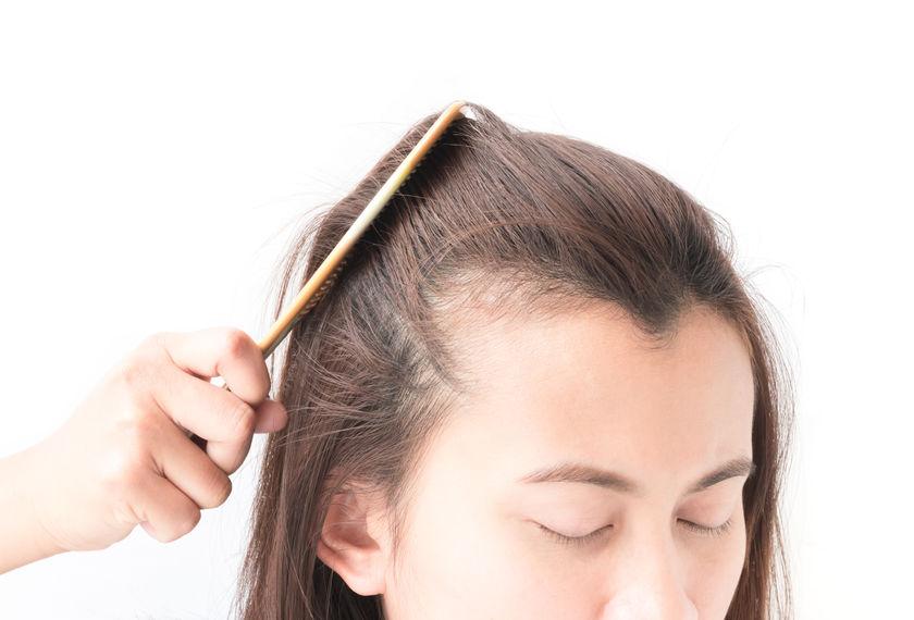 kosten voor het verlagen van haargrens en het verkleinen van voorhoofd