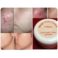 cara pemakaian magic acne cream