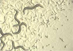 Tiny Worms-Keeping Humans Healthy?