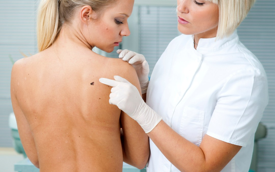 Herpes to fight skin cancer?