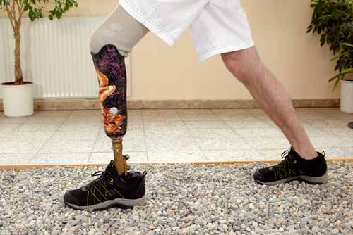 Prosthetics: Brain Controlled