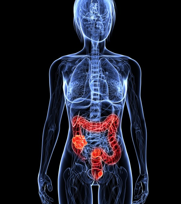 Chronic Inflammation Shows Greater Colon Cancer Spread in Mice