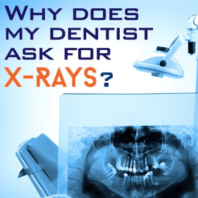 X_Rays (1)