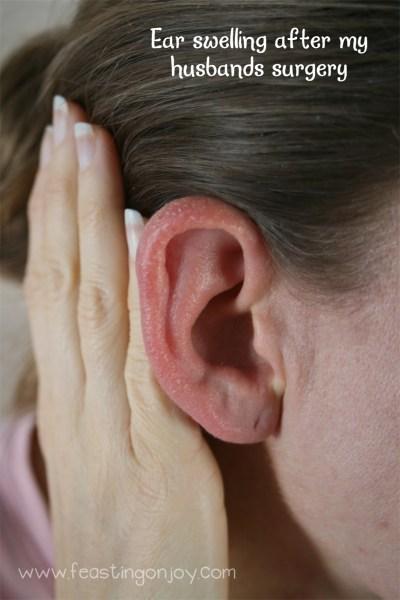 Ear Swelling