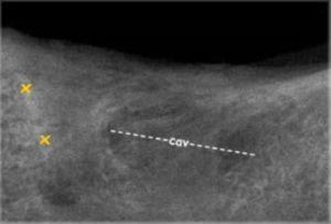 Cavitation X Ray