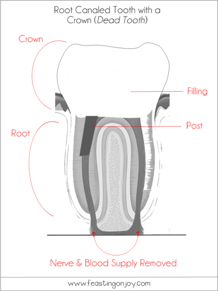 The Dangers of Root Canals | Holistic Oral Health Series Part 2 (3) | Feasting On Joy
