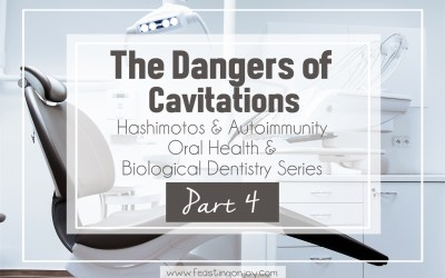 Hashimotos and Autoimmunity, Oral Health and Biological Dentistry Part 4: The Dangers of Cavitations