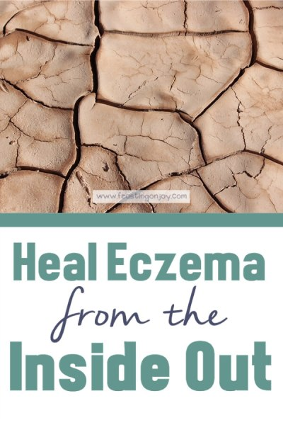 Heal Eczema From the Inside Out | Feasting On Joy