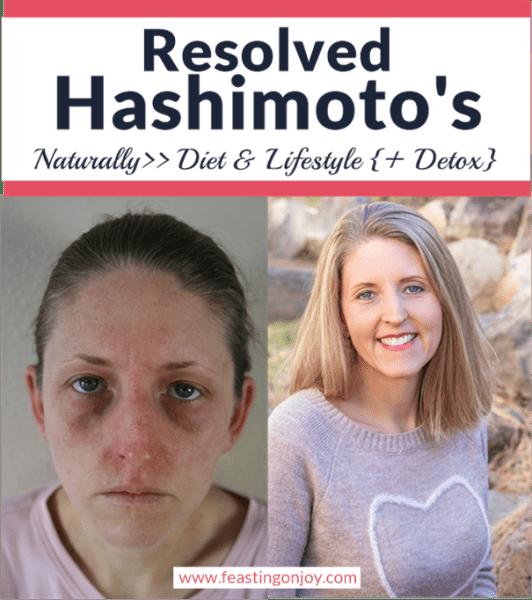 Resolved Hashimoto's Naturally | Feasting On Joy