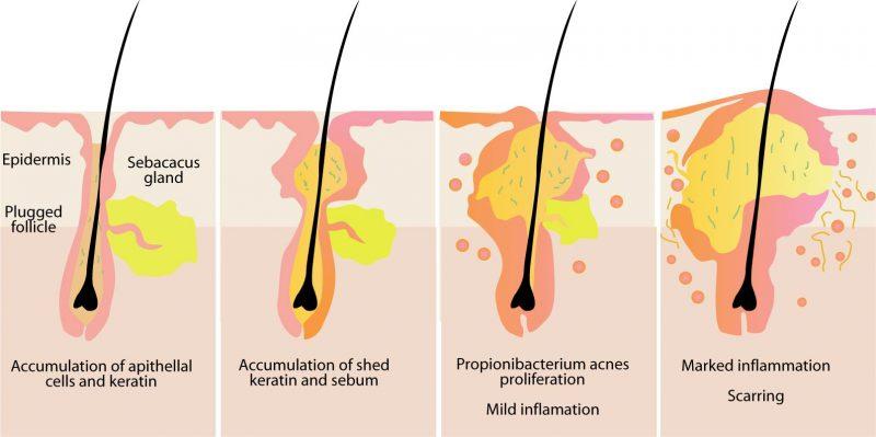 acne cure rimedi