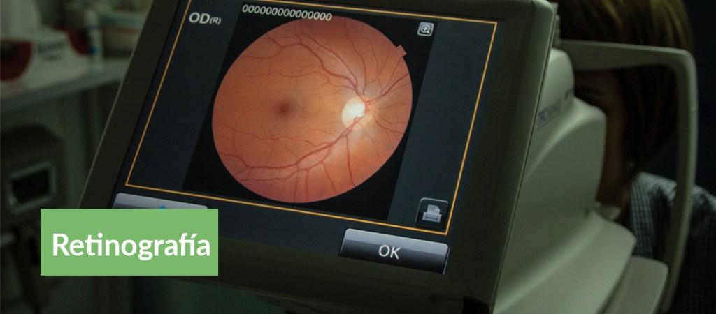 servicios retinografía federopticos lukus