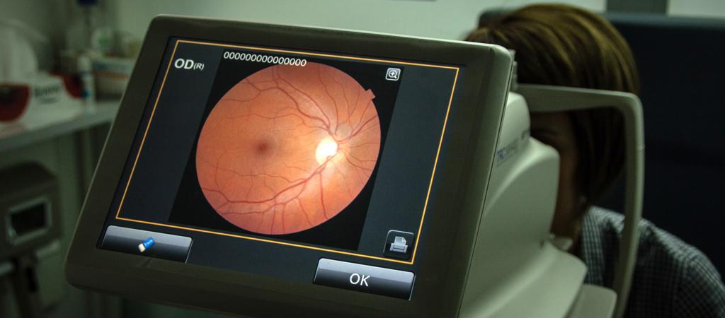 retinografía federopticos lukus