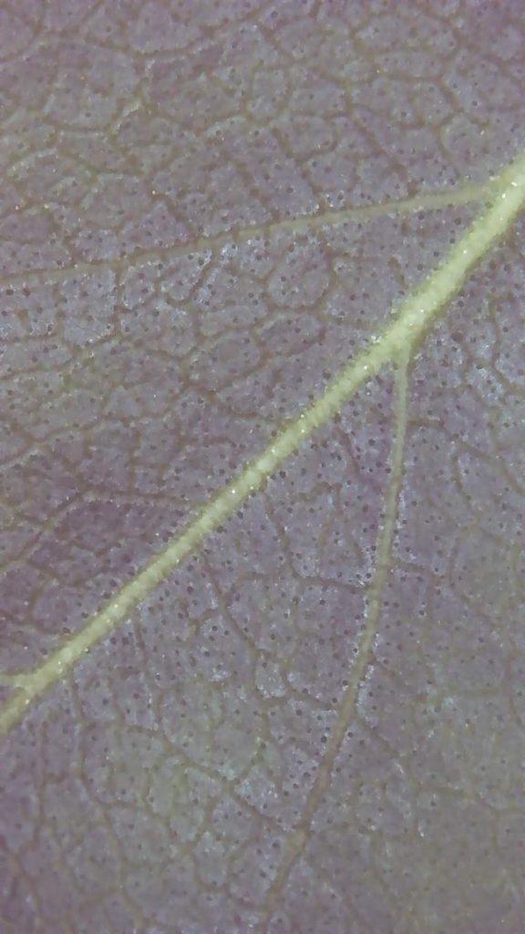 usb mikroskop 481 n 576x1024 1