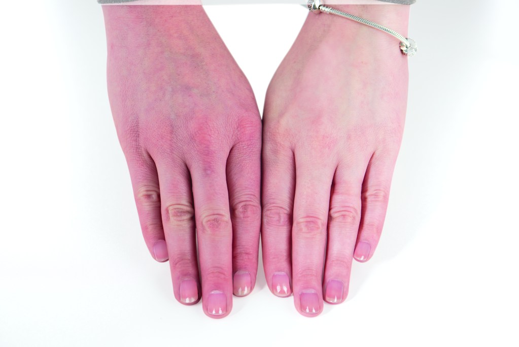 Two hands are showing the before and after results of using the Hydrate & Heal system.